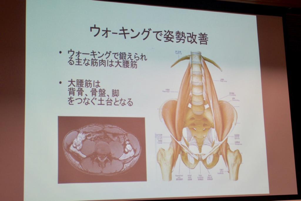 Posture improvement by walking